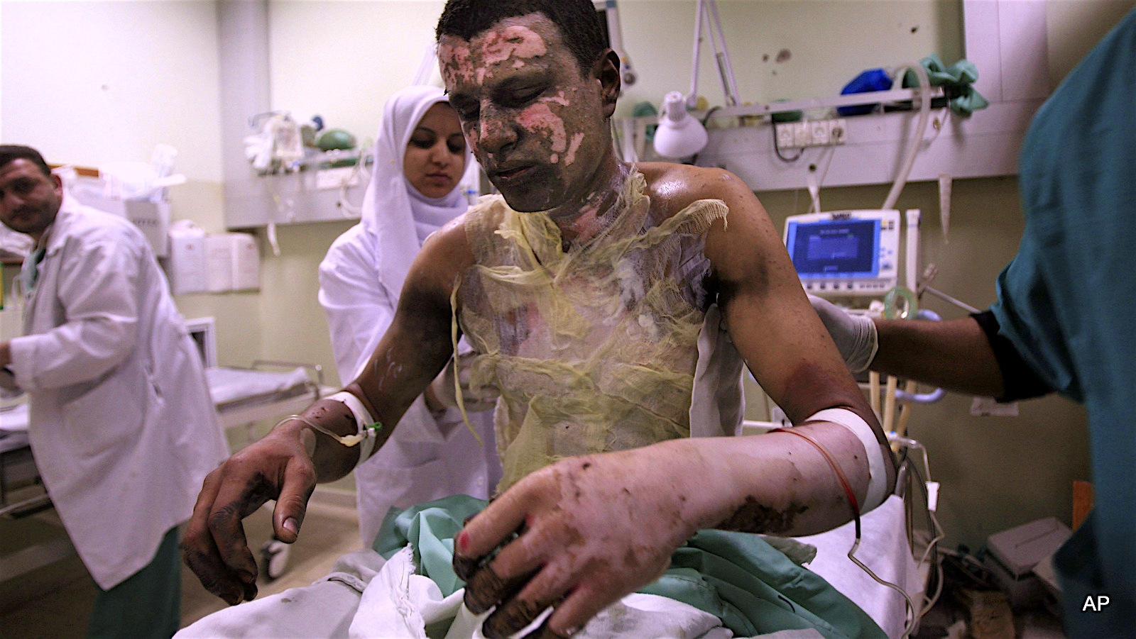 ** FILE ** EDS NOTE GRAPHIC CONTENT ** In this Sunday, Jan. 11, 2009, file photo shows Palestinian Akram Abu Roka is treated for burns at Nasser Hospital in Khan Younis in the southern Gaza Strip. Human Rights Watch issued a report Wednesday, March 25 2009 that Israel fired white phosphorous shells indiscriminately over densely populated Gaza, and that this is evidence of war crimes. (AP Photo/Eyad Baba, File)