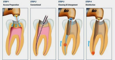 root-canal-therapy_tn