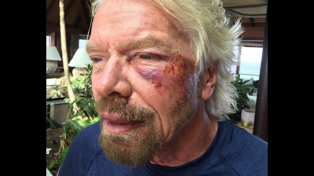 Richard Branson Black Eye