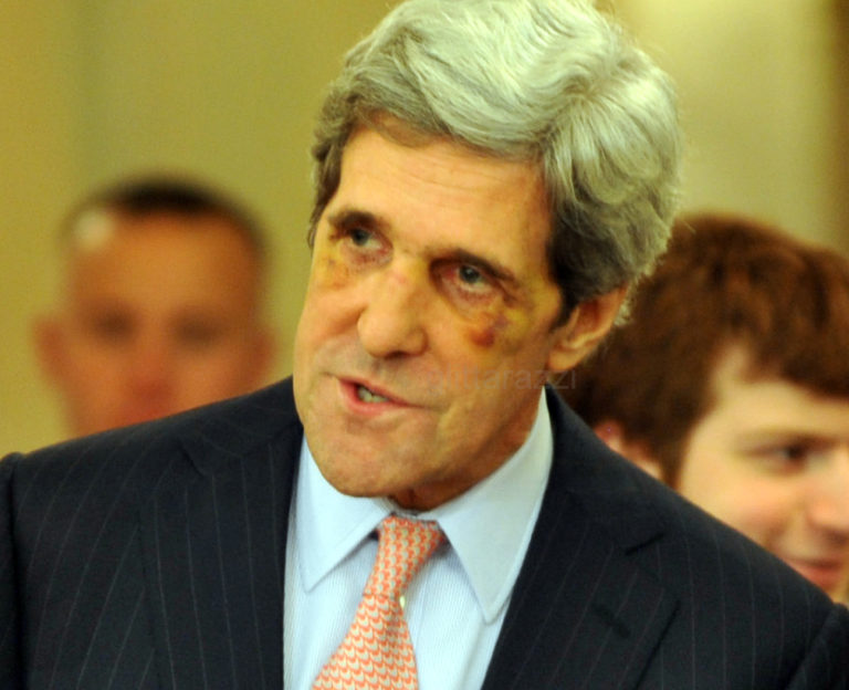 John Kerry Black Eye