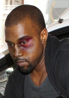 Kanye West Black Eye
