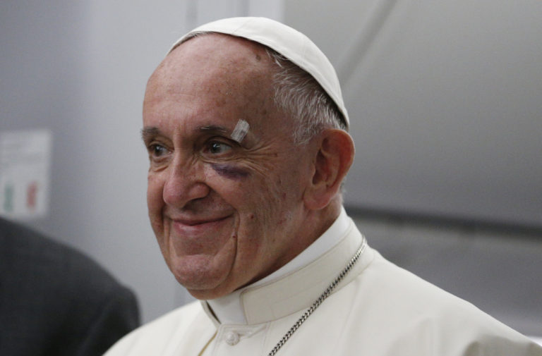 Pope Francis Black Eye