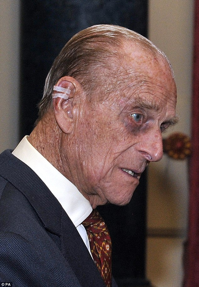 Prince Philip Black Eye