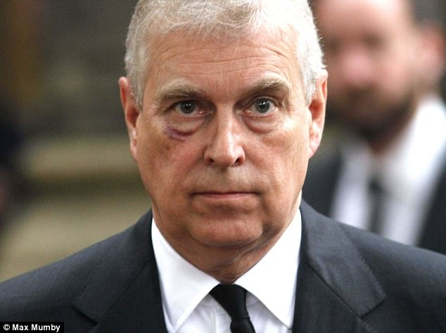 Prince Andrew Black Eye