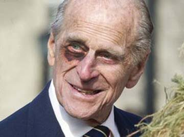 Prince Phillip Black Eye